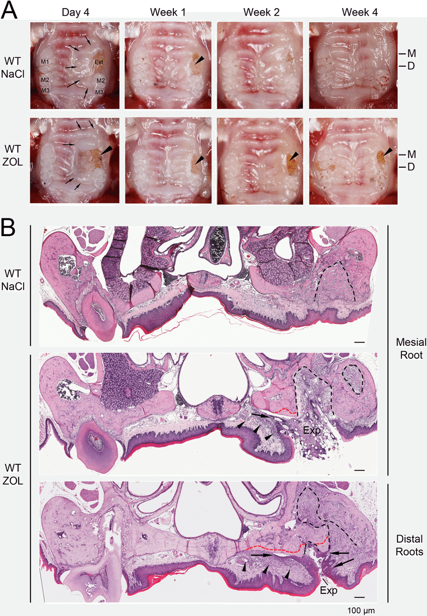 medium resolution of tooth extraction wound healing in wt mice and the development of onj like lesions in