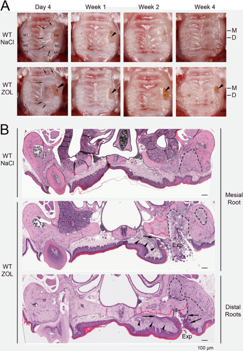 small resolution of tooth extraction wound healing in wt mice and the development of onj like lesions in