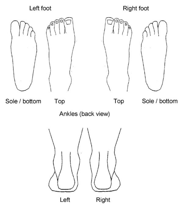 The blank foot pain manikin. Garrow AP, Silman AJ