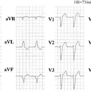 Cardiac monitor tracing and intracardiac electrocardiogram