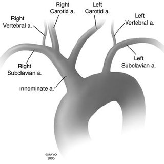 The aortic arch branching pattern found in cattle has a single...   Download Scientific Diagram