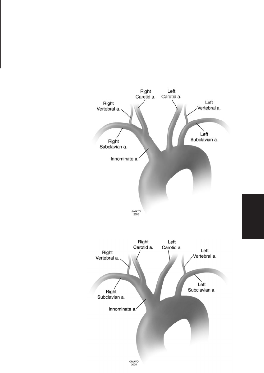 Bovine Aortic Arch Variant in Humans: Clarification of a Common Misnomer (PDF Download Available)