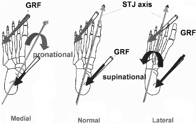 Changes in spatial orientation of the subtalar axis and