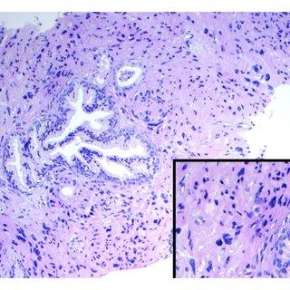 (PDF) Prostatic Stromal Hyperplasia with Atypia