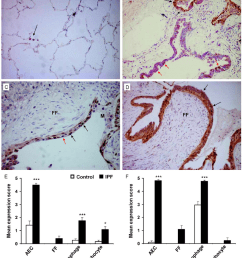 dual labelled immunohistochemistry of ipf and control lung samples for cyclin d1 and socs3 expres [ 850 x 984 Pixel ]