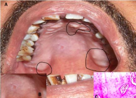 Pertumbuhan Tulang Secara Janggal di Gusi- Global Estetik Dental Care
