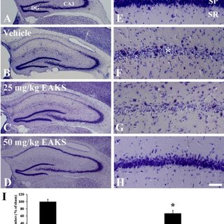 Cresyl violet staining in the hippocampus of sham (A. E).... | Download Scientific Diagram