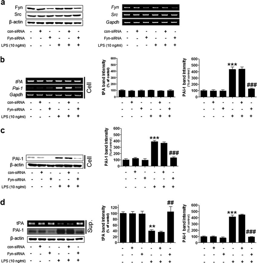 Fig. 2 siRNA-mediated knockdown of Fyn in rat primary