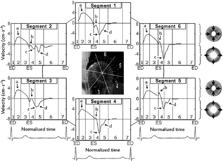 Radial velocity graphs for basal left ventricular segments