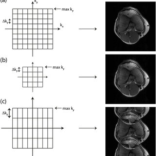 (PDF) Reducing acquisition time in clinical MRI by data