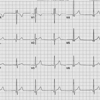 ECG shows first-degree AV block (PR interval >200 ms). The