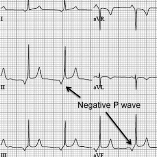 ECG showing third-degree (complete) AV block and a