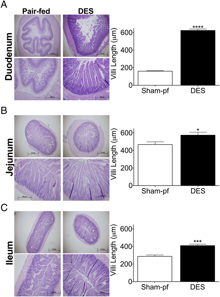 hight resolution of duodenal endoluminal sleeve des stimulates upper intestinal villus growth representative images
