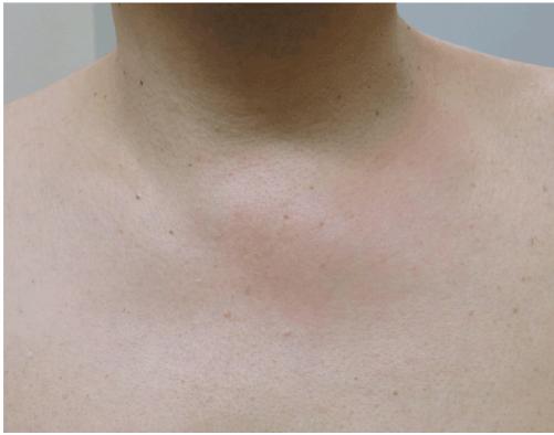 Growth Abnormal Bone Collar