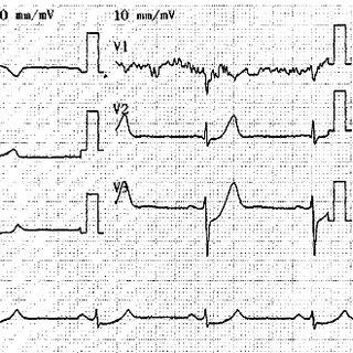 ECG patterns of Q-wave/Q-wave equivalent myocardial