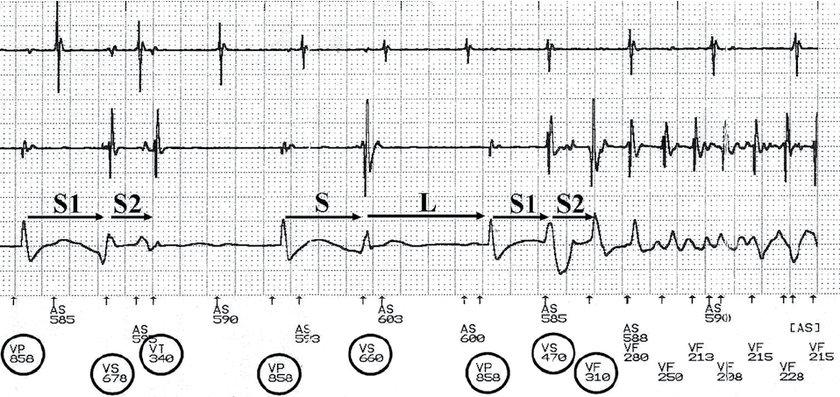 ECG strip showing an episode of ventricular fibrillation