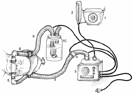 CPAP device and components 1) oxygen blender; 2) flowmeter