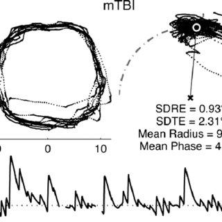 (PDF) Predictive Visual Tracking: Specificity in Mild
