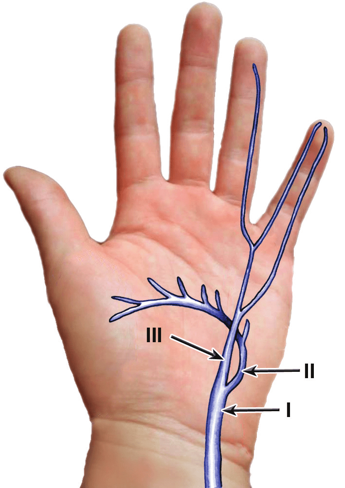 ulnar nerve diagram alpine type x 12 wiring shea and mcclain s subdivision of the lesions in guyon canal i