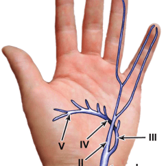 Hand Nerves Diagram Control Wiring Of Apfc Panel Wu Et Al S Subdivision The Lesions Ulnar Nerve In I Download Scientific