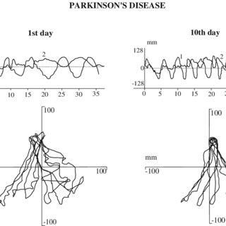 (PDF) Supervised learning of postural tasks in patients