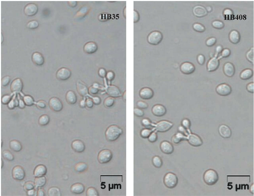 Cell morphology of two new members of the genus Fellomyces