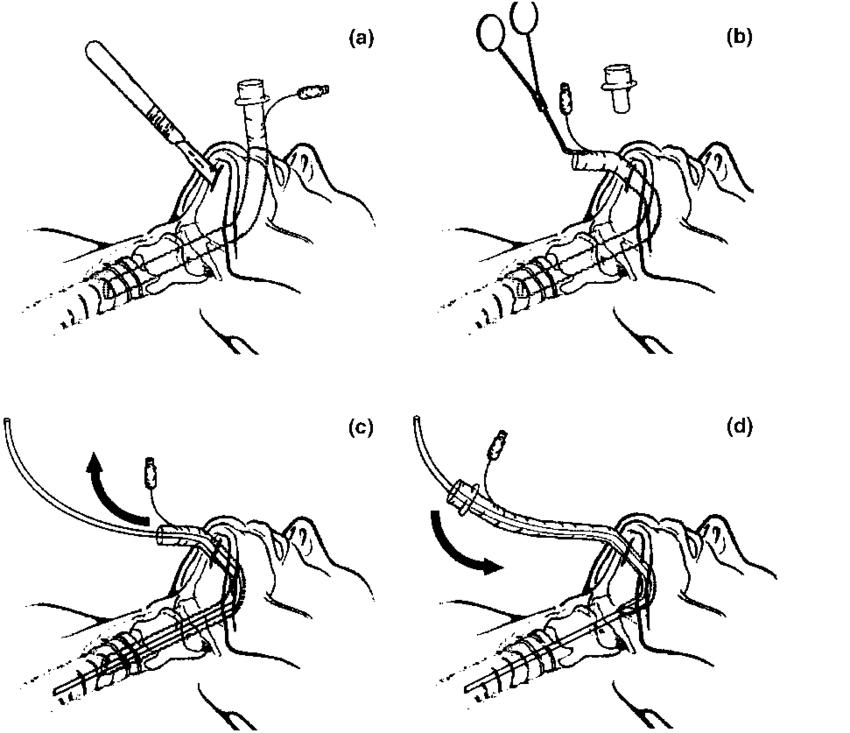 Schematic diagram showing submental intubation procedure
