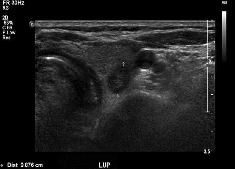 Thyroid ultrasound finding. Diffuse heterogenous low echogenicity of... | Download Scientific Diagram