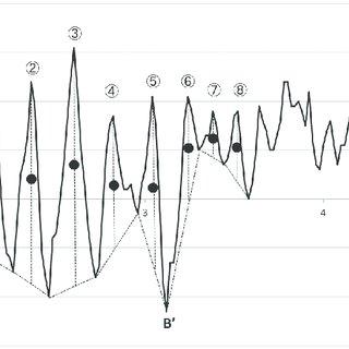 (PDF) A New Method of Analyzing the Closing Volume (CV