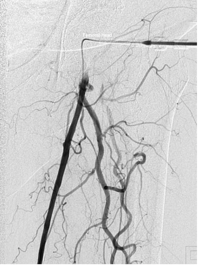 nitial antegrade angiogram from left common femoral artery