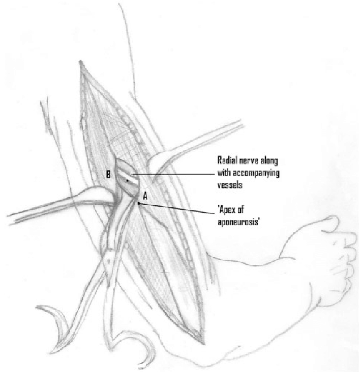 radial nerve diagram chrysler wiring radio a shows how during the posterior approach to humerus and accompanying vessels can be seen in tunnel made approximately