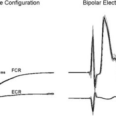 Left panel: Bipolar electrode placement with 1 electrode
