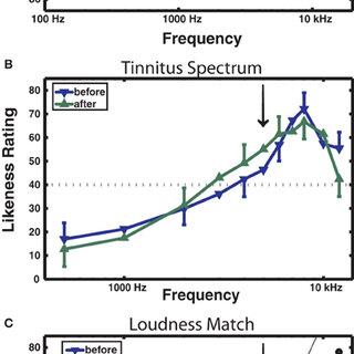 ASSR amplitude and P2 amplitude. (A) Changes in ASSR