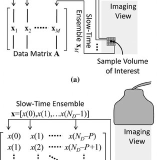 (PDF) Eigen-Based Clutter Filter Design for Ultrasound