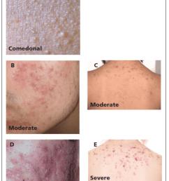 different grades of acne a comedonal facial acne b download back skin diagram back acne diagram [ 850 x 1279 Pixel ]