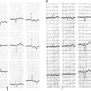 (A) ECG on admission to the intensive care unit for severe