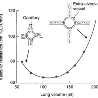 Increased PVR at extremes of lung volumes. This figure