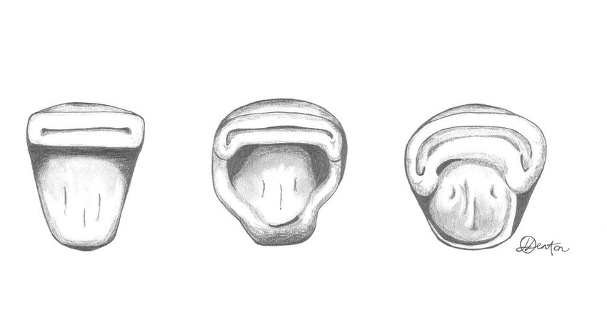 Figure 2.3. Occlusal view of morphological variation in