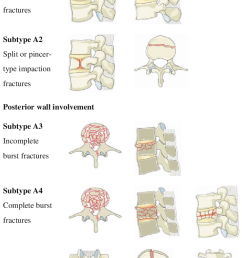 type a compression injuries of the vertebral body [ 714 x 1102 Pixel ]