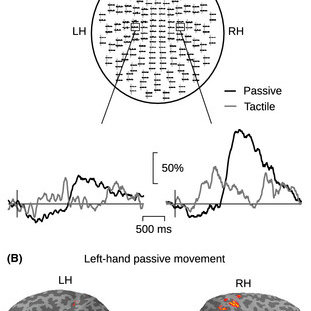 (PDF) P528: Modulation of the 20-Hz motor cortex rhythm to