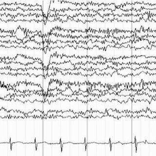 Excessive beta activity on electroencephalogram (EEG) in a