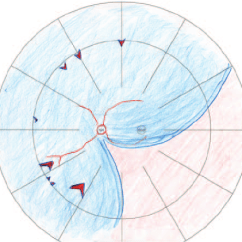 Diagram Of The Left Eye 2 Way Switching Wiring Schematic Retinal Detachment In Showing Position And Approximate Size