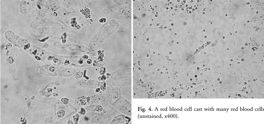 Many hyaline and cellular casts intermingled with each