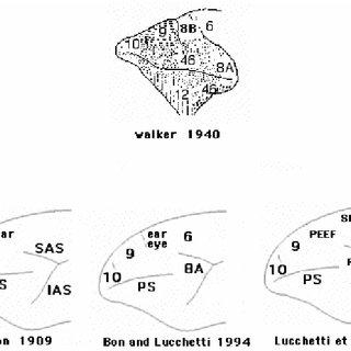 Inhibitory effect of visual fixation on auditory-motor