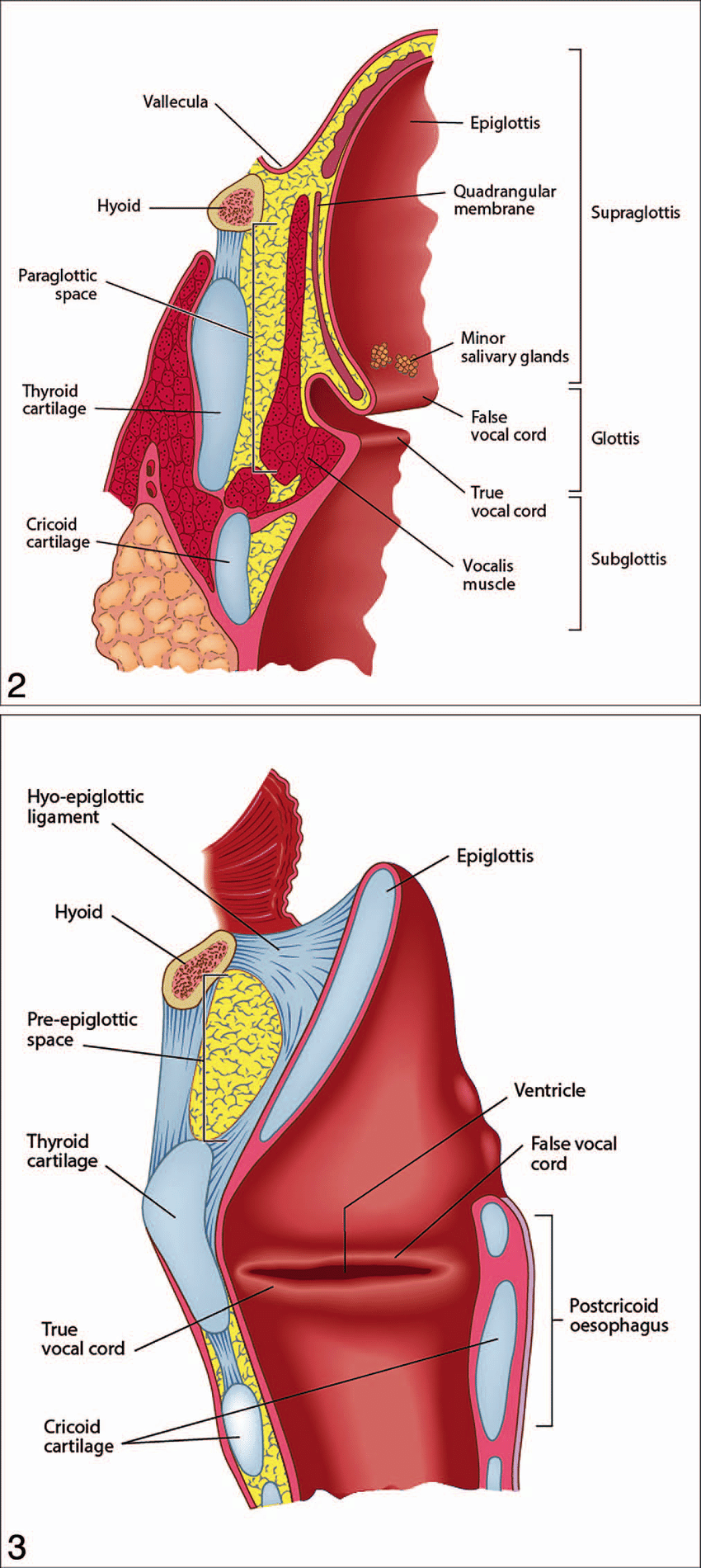 hight resolution of coronal section through the larynx to show the main anatomic structures the subsites and