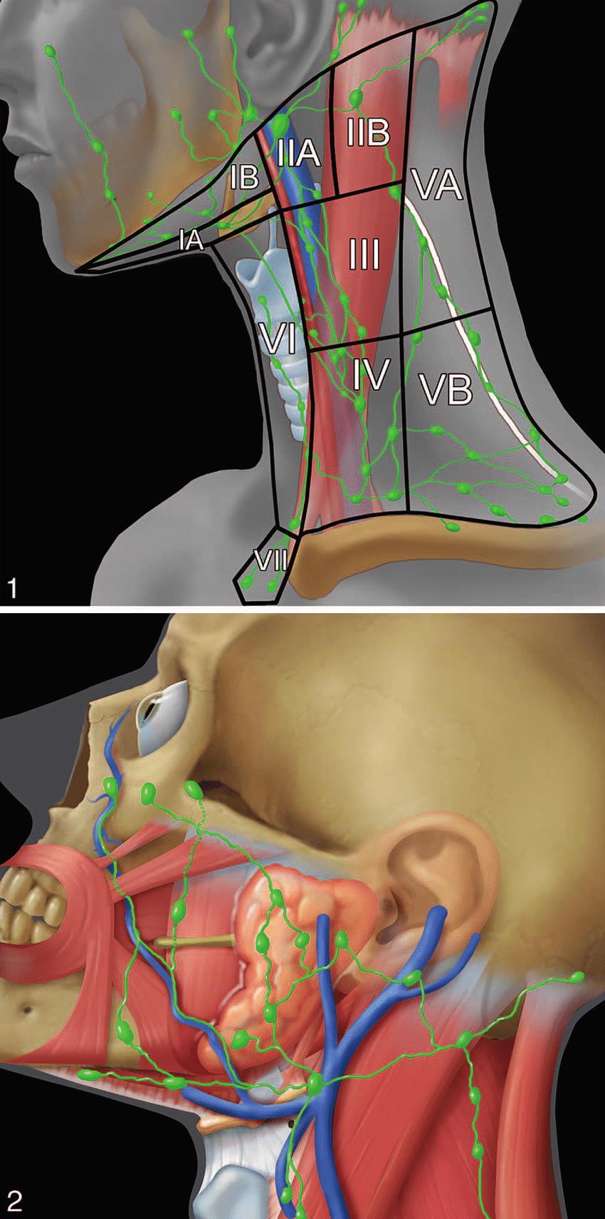 hight resolution of head and neck lymph node groups of the facial area including the parotid buccofacial