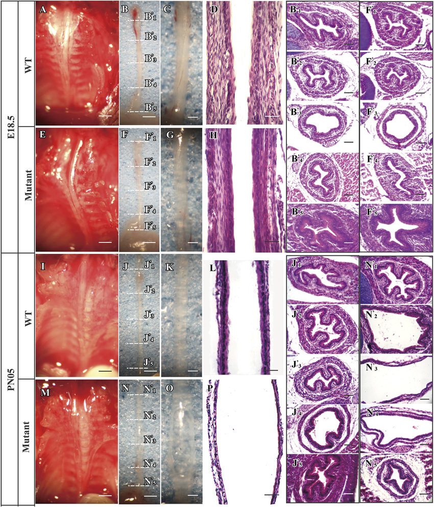 hight resolution of shh mutant in the developing esophagus led to megaesophagus with reduced length thickness and