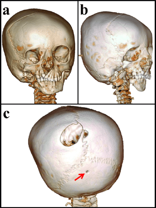 small resolution of three dimensional ct scan of the skull a asymmetrical facial bones small