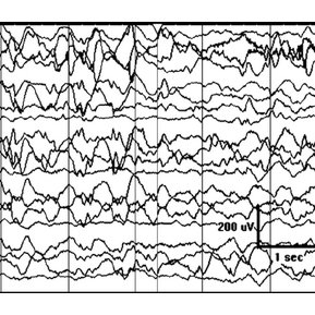 Interictal EEG recording of typical hypsarrhythmia in a
