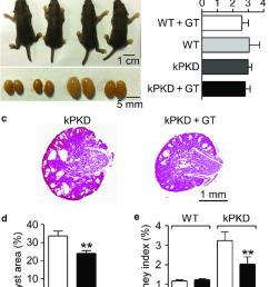 ganoderma triterpenes gt inhibit renal cyst development in a pkd1 flox flox [ 850 x 1087 Pixel ]